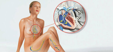 Eingeschwemmtes Blutgerinnsel: So entsteht eine Lungenembolie