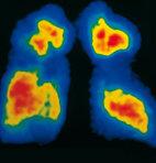 Perfusionsszintigramm der Lunge: Rot sind gut durchblutete Areale, blau weniger gut durchblutete