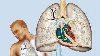 Darstellung, Lungenembolie und Bein-Thrombose