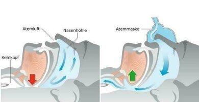Links: Verlegte Atemwege (roter Pfeil). Rechts: Die Atemmaske hält die Atemwege offen (grüner Pfeil)