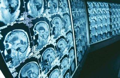 Moderne bildgebende Verfahren liefern detaillerte Einblicke in die untersuchten Organe