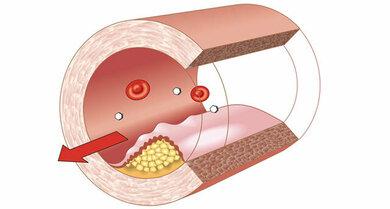Arteriosklerose: Ablagerungen an der Gefäßwand