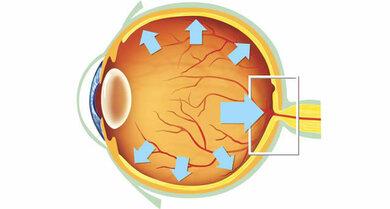 Ein individuell zu hoher Augeninnendruck schädigt auf Dauer den Sehnerv