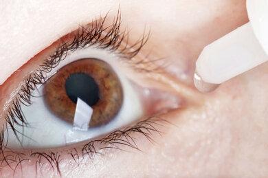 Bei einer Bindehautentzündung können wirkstoffhaltige Augenmedikamente (Tropfen, Augengel) helfen