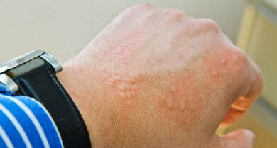 Quaddeln können ein Zeichen für eine allergische Reaktion sein
