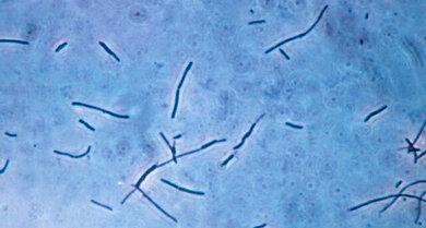 Bakterielle Vaginose: Günstige Lactobazillen (stäbchenförmige Gebilde hier im Foto) werden teilweise von anderen Keimen verdrängt