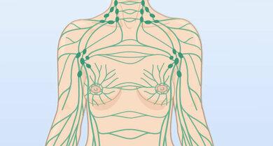 Lymphsystem: Lymphknoten und Lymphbahnen