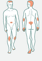 Als Ursache von Kreuzschmerzen eher unbekannt: Schuppenflechte. Hier typische Hautstellen