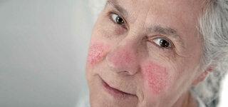 Gesicht einer Seniorin mit anfangender Rosazea