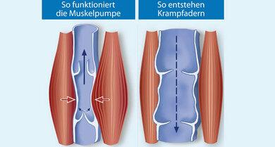 Sind die Klappen intakt (siehe links), fließt das Venenblut in die richtige Richtung
