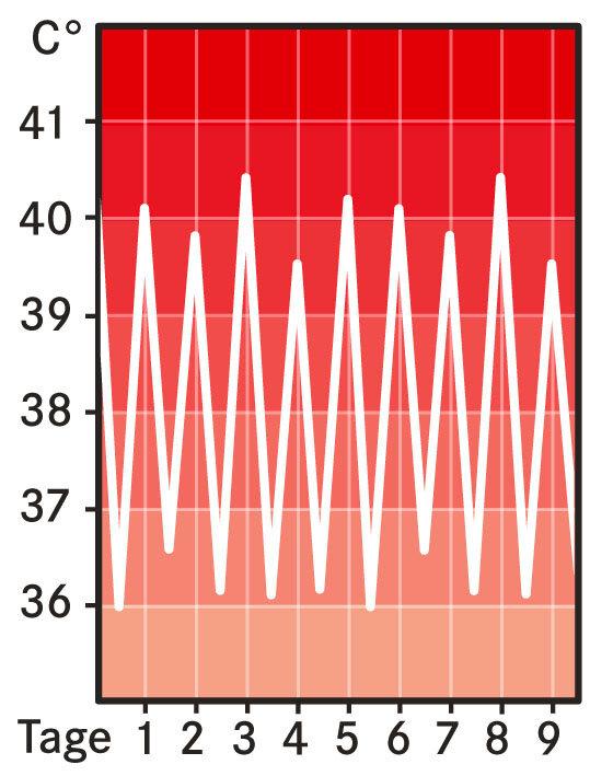 Fieberkurve: Intermittierendes Fieber