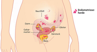 Irrläufer: Endometriose in verschiedenen Organen