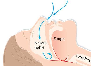 Obstruktive Schlafapnoe: In Rückenlage sind die Atemwege verlegt. Die Folgen: Schnarchen oder auch Atemaussetzer