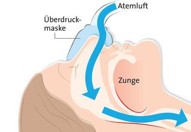 Therapie der obstruktiven Schlafapnoe mit Atemmaske: Sie hält die Atemwege offen, Schlaf und Befinden bessern sich