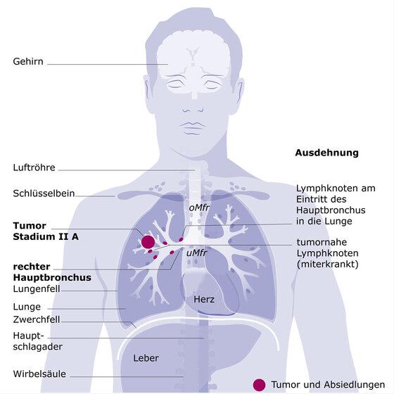 Lungenkrebs Stadium II