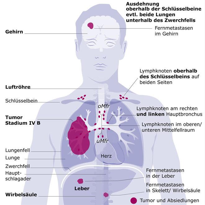 Lungenkrebs Stadium IV