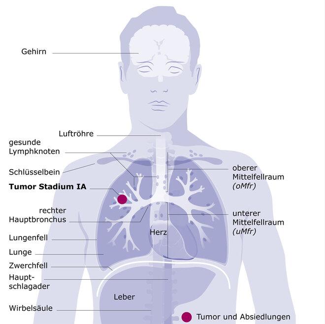 Lungenkrebs Stadium I