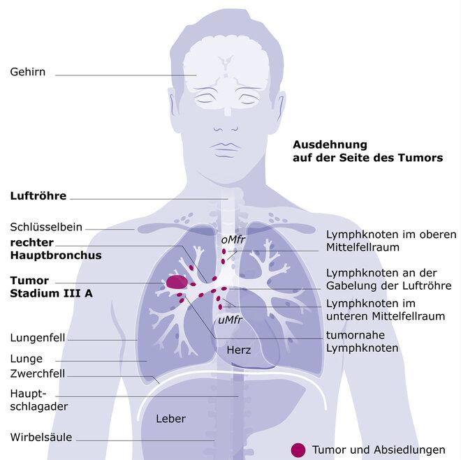 Lungenkrebs Stadium III