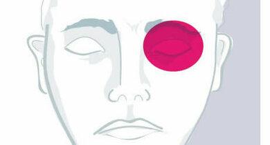 Trigeminoautonome Kopfschmerzen: Einseitige Schmerzattacken um die Augen und an der Stirn, Tränen