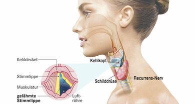 Stimmbandlähmung: Mitunter ist eine Operation der Schilddrüse die Ursache