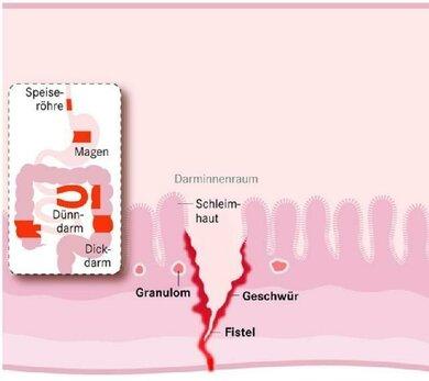 Bei Morbus Crohn können sich Fisteln, also schluchtartige Gangverbindungen ins umgebende Gewebe, bilden (Schemazeichnung)
