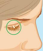 Besonders störend können Stielwarzen am Augenlid sein