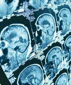 Mit der MRT sind auch Längsschnitte durch den Kopf möglich