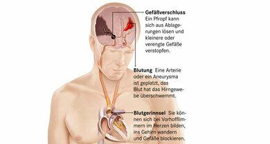 Ein Gefäßverschluss oder eine Hirnblutung kann eine vaskuläre Demenz auslösen. Um die komplette Grafik zu sehen, bitte auf die Lupe oben links klicken