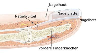 Fingernagel eiter unterm Einen eingewachsenen