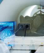 Durch eine Magnet-Resonanz-Tomografie lässt sich auch das Gehirn bildlich darstellen