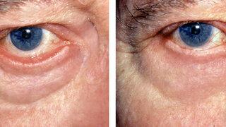 Ektropium: vor (links) und nach Operation