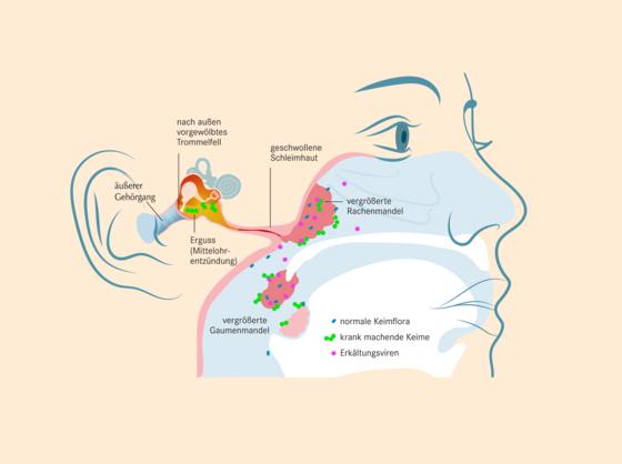 Mittelohrentzündung