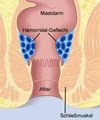 Vergrößerte Hämorriden bilden sich in einem Adergeflecht (hier blau dargestellt) am äußeren Ende des Mastdarms. Um die komplette Grafik zu sehen, bitte auf die Lupe oben links klicken