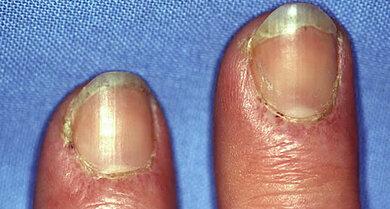 Dermatomyositis mit Beteiligung der Finger