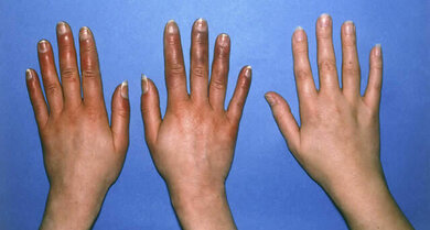 Akrozyanose (Rot-Blau-Sucht; beide Hände links im Bild)