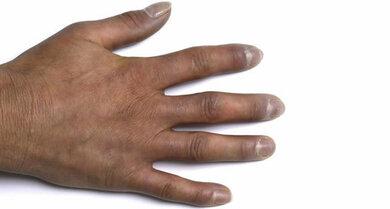 Sklerodermie: Die Bindegewebserkrankung beginnt meist an den Händen