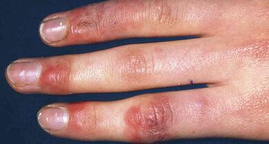 Frostbeulen zeigen sich meist auf der Oberseite von Fingern oder Zehen