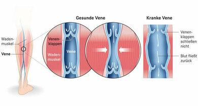 Die Muskelpumpe fördert den Blutfluss in den Venen. Bewegen wir die Muskeln nicht, fließt das Blut schlechter. Sind die Venenklappen undicht, staut es sich zurück