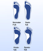 Fußabdrücke: Die Wenigsten sind normal unterwegs