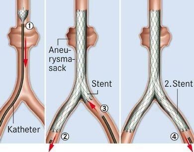Aneurysma-Therapie mit Gefäßstütze (Stent; hier: große Schlagadern im Becken- und Bauchraum, Schemazeichnung)