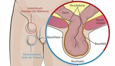 Unterschiedliche Lage: Leistenbruch und Schenkelbruch. Letzter tritt bei Männern mitunter nach einer Leistenbruch-OP auf