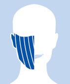 Zentrale Gesichtslähmung: Die Lähmung betrifft eine Gesichtshälfte