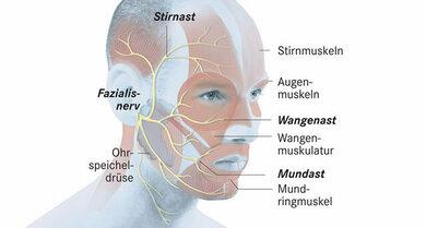 Der Gesichtsnerv mit seinen Ästen (schematisch)