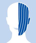 Periphere (einseitige) Gesichtslähmung: Die Muskeln auf einer Seite des Gesichts und der Stirn sind geschwächt oder gelähmt