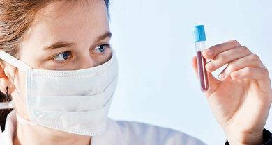Blutuntersuchungen können auch bei Schluckauf auf die Spur helfen