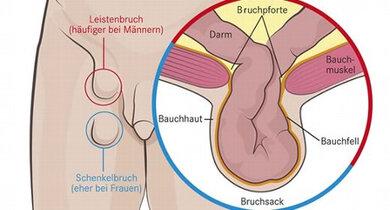 Schematische (vereinfachte) Darstelung eines Bruchs mit Bruchpforte, Bruchsack und Bruchinhalt