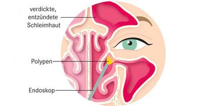 Polypen der Nebenhöhlen können mit einem Endoskop durch die Nasenlöcher entfernt werden