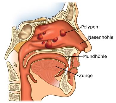 Nasenpolypen können von den Nasennebenhöhlen aus bis in die Nasenhöhle wachsen