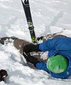 Ein Bänderriss im Knie, zum Beispiel eine Kreuzbandruptur, ist nicht selten die Folge eines Skiunfalls