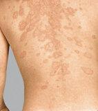 Ausschlag bei Schuppenflechte (Psoriasis)